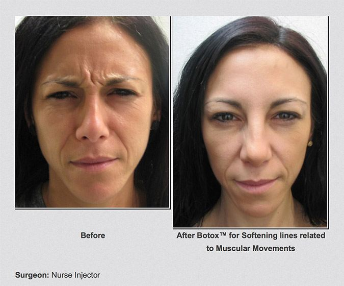 Isable before and after botox