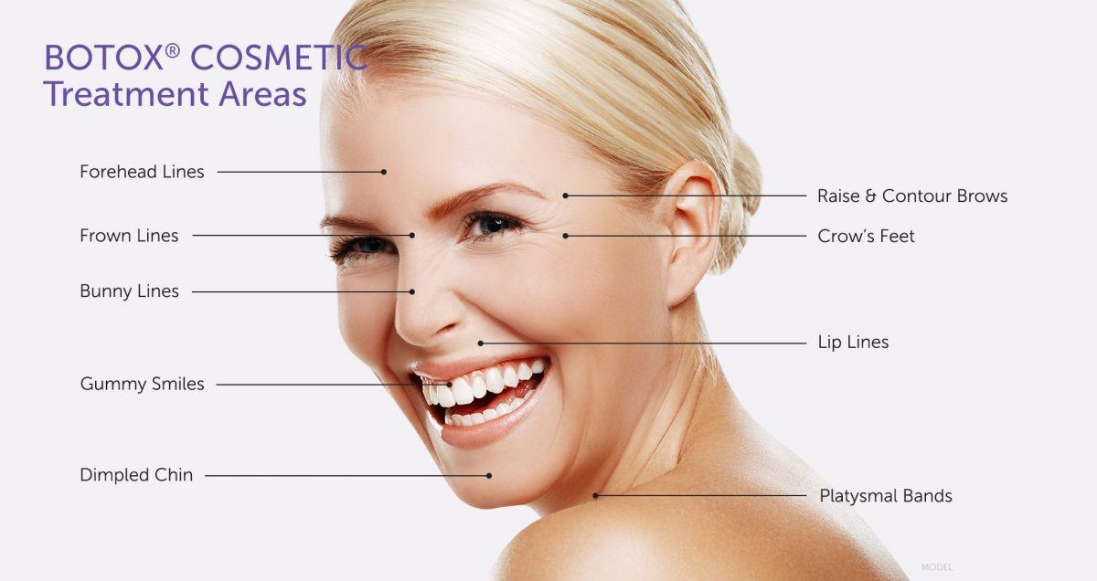 BOTOX treatment areas infographic